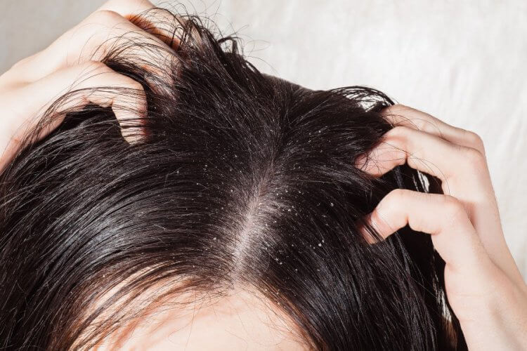 乾燥 フケ 頭を洗ってもフケが出る原因と対策※僕が治った方法※